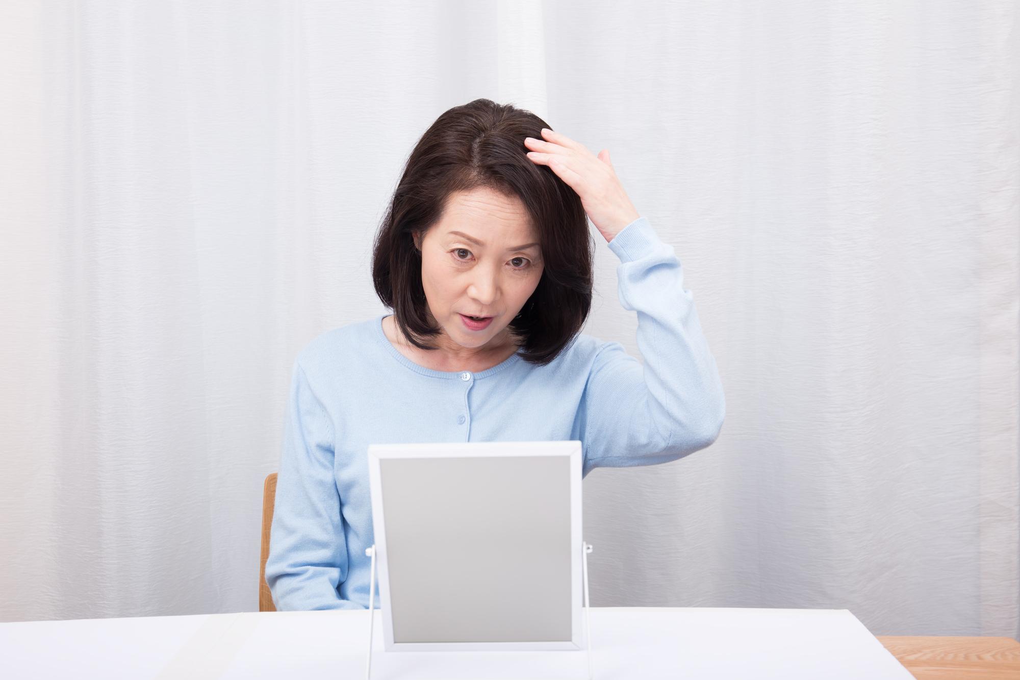 女性の薄毛治療としてのステロイドの効果とデメリット