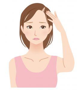 分け目の薄毛