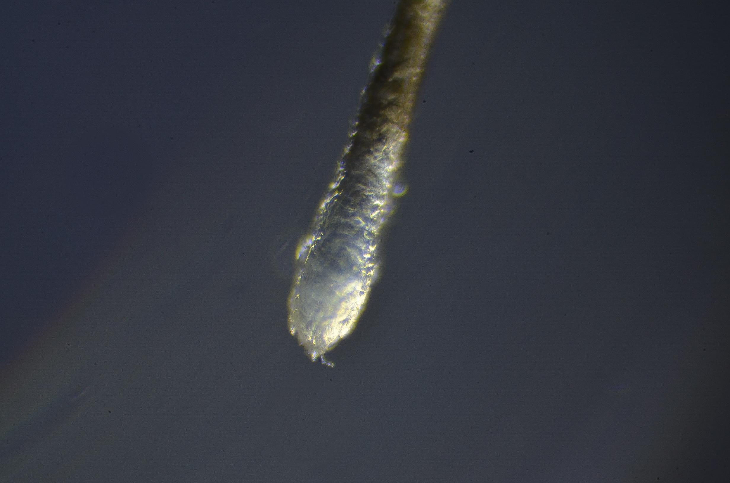 細い毛根は薄毛の合図?原因やその対策法を解説します