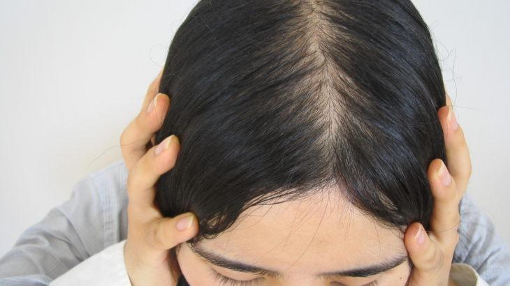 抜け毛に悩む壇蜜さんは本当に薄毛?画像から真相を追う