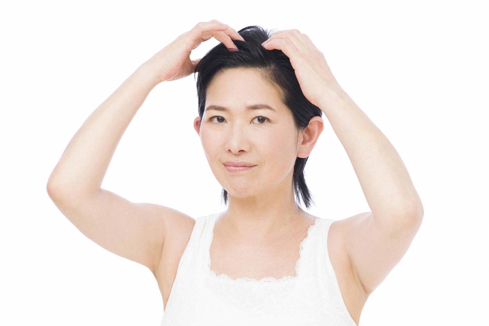 牽引性脱毛症に育毛剤は効く?おすすめ商品も紹介
