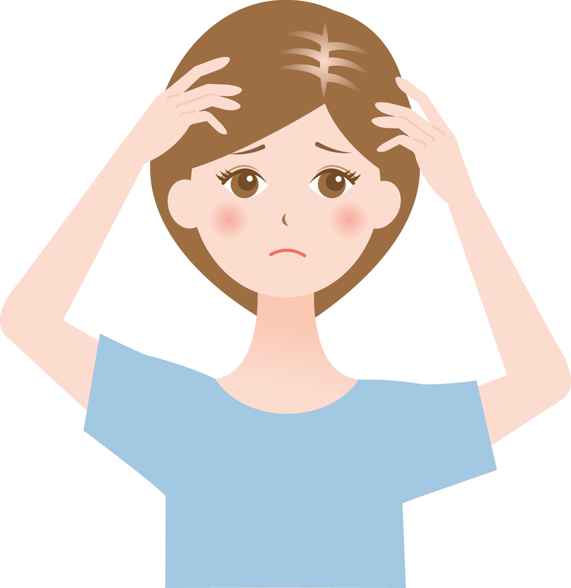 バセドウ病は女性の薄毛と関係アリ!?抜け毛が増加する原因を解説
