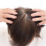 薄毛の女性は頭皮が赤い…!?その理由と対策法