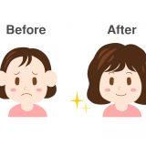 女性の薄毛ビフォーアフター