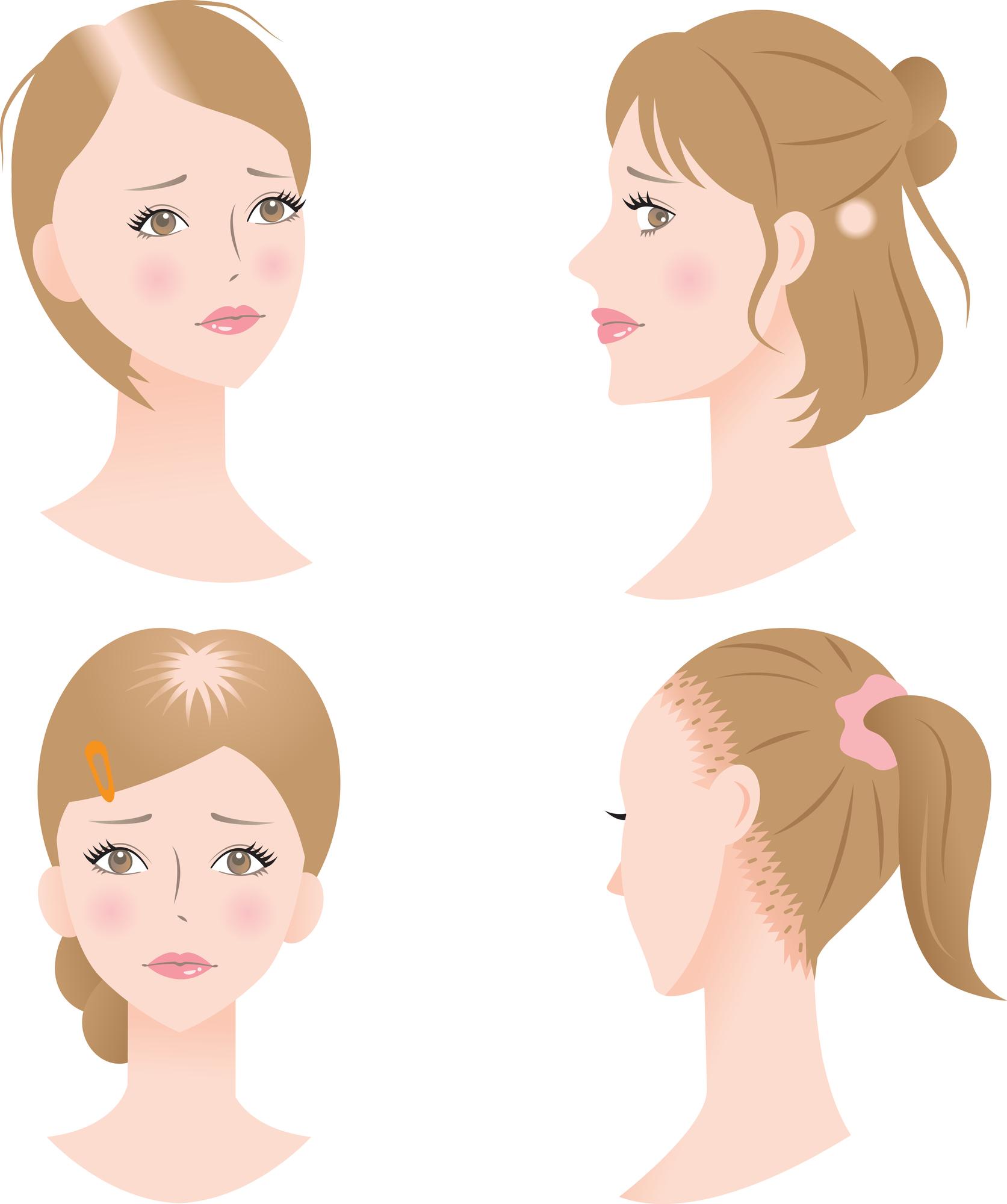 女性の抜け毛はエストロゲンの減少が関係してる!?【女性ホルモンと薄毛のメカニズム】