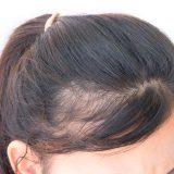 生え際の薄毛へのマイナチュレの効果とは?【口コミあり】