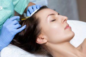 薄毛治療の注射