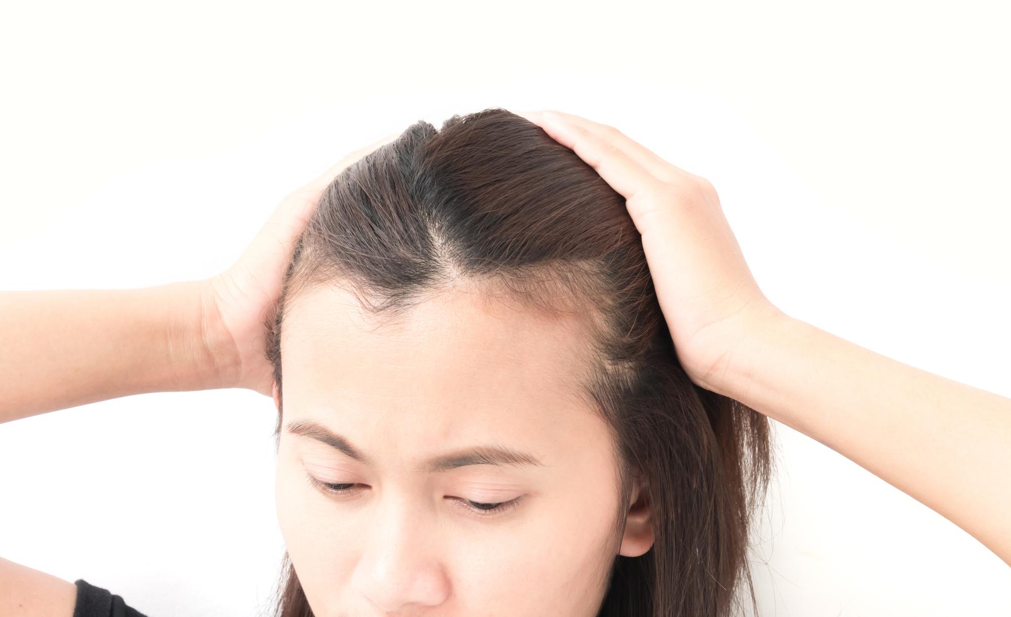 産後3ヶ月目に抜け毛がひどい時の対処法