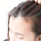 生え際・前髪が薄毛の女性に円形脱毛症の可能性は?見分け方も解説