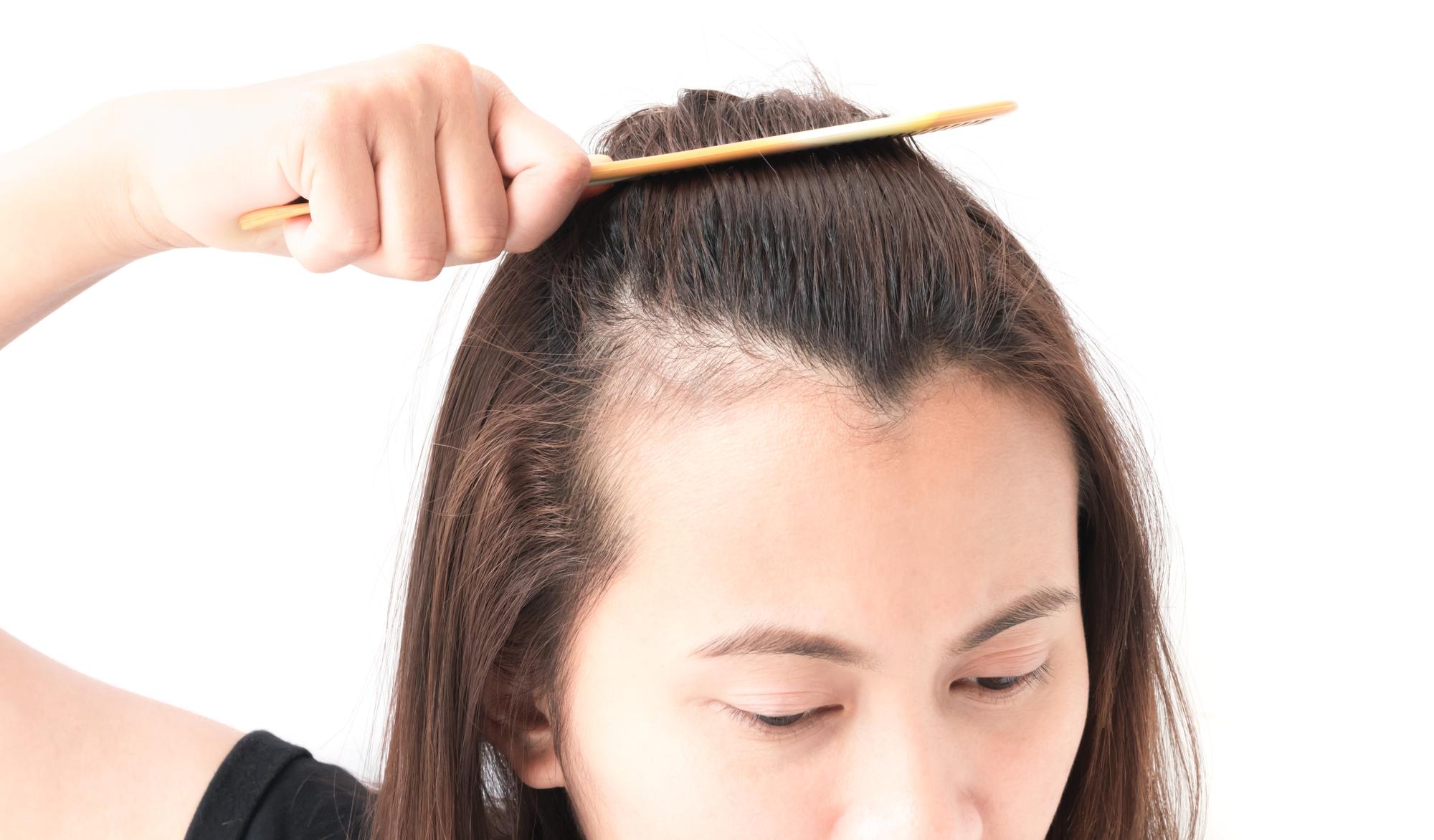 40代女性ならではの抜け毛が増える原因とは?対策方法も紹介