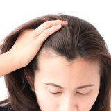 女性の円形脱毛症の発症場所と種類の関係性