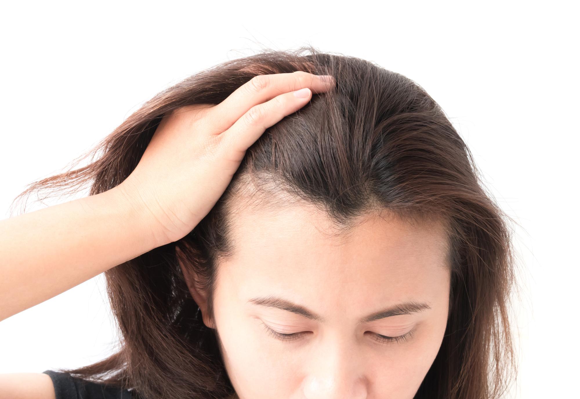 毛根でびまん性脱毛症の症状チェックはできる?